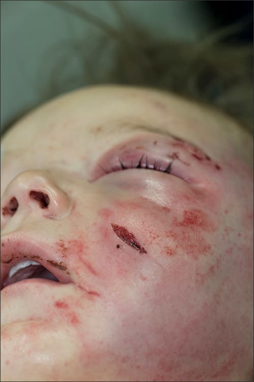 Photo showing facial injuries of a child abuse victim