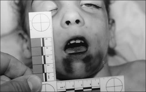 Photo showing burns on the chin and other facial injuries of a child abuse victim
