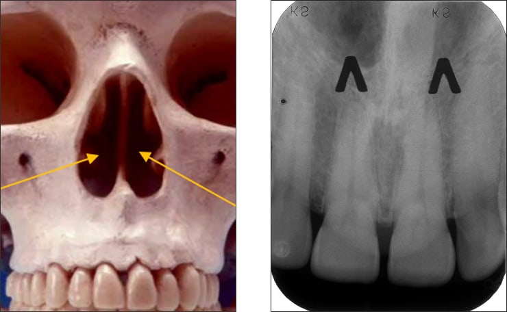 Photo and xray examples indicating the nasal fossae landmark