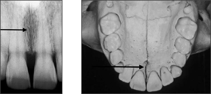 Xray examples indicating the incisive foramen landmark