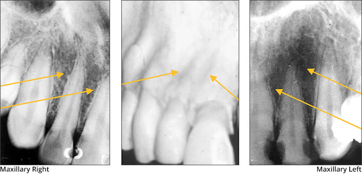 Xray examples indicating the lateral fossa landmark