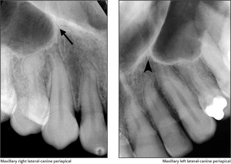 Xray examples indicating the inverted Y radiographic landmark