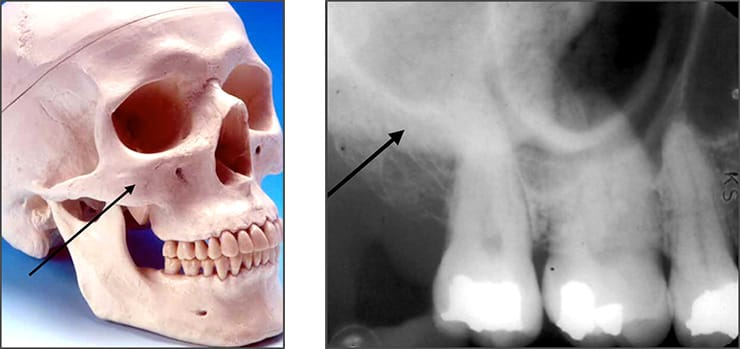 Photo and xray examples indicating the zygomatic bone landmark