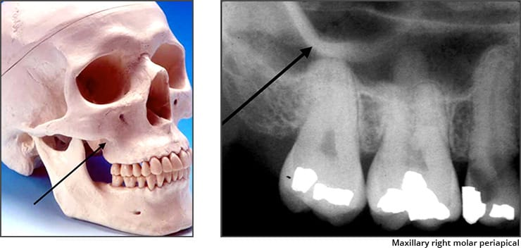 Photo and xray examples indicating the zygomatic process landmark