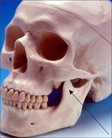Photo example indicating the coronoid process landmark