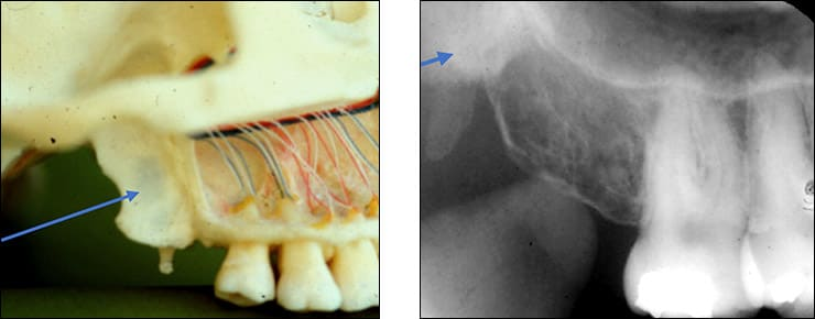 Photo and xray examples indicating the pterygoid plates landmark