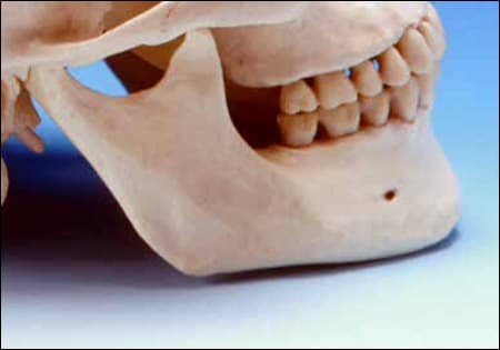 Photo example indicating the mandibular anatomical landmarks