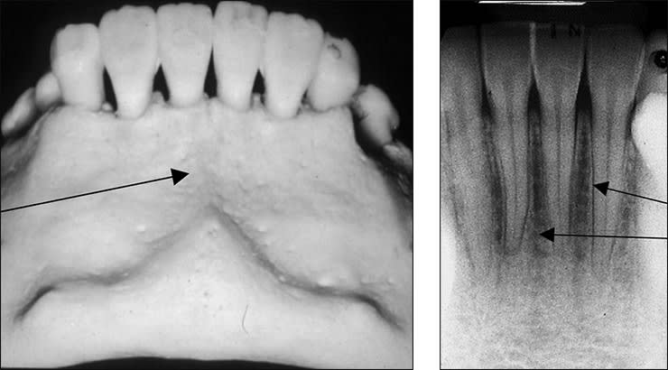Xray examples indicating the mental fossa landmark