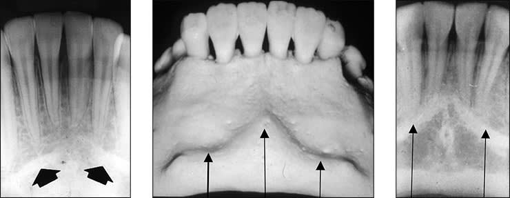 Xray examples indicating the mental ridge landmark