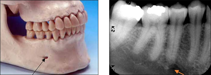 Photo and xray examples indicating the mental foramen landmark