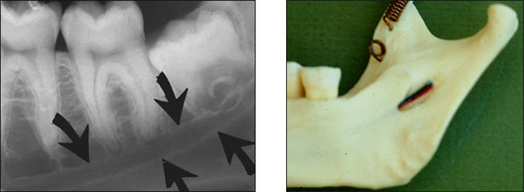 Photo and xray examples indicating the mandibular canal landmark