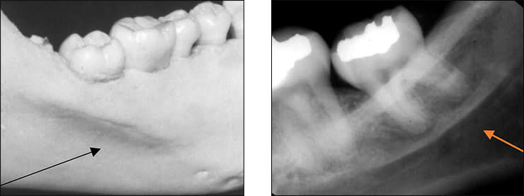 Photo and xray examples indicating the submandibular fossa landmark