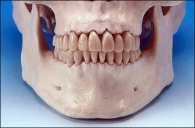Photo example indicating the mandibular lower border landmark