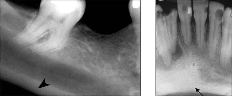 Xray examples indicating the mandibular lower border landmark