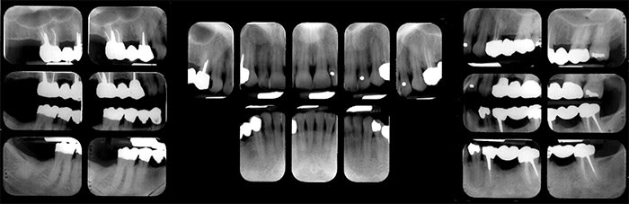 First full mouth survey radiographS showing anatomical structures
