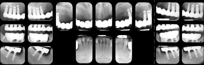 Second full mouth survey radiographS showing anatomical structures