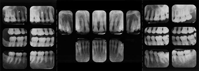 Third full mouth survey radiographS showing anatomical structures