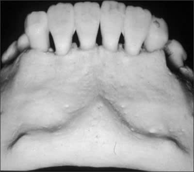 Radiograph for test question 14