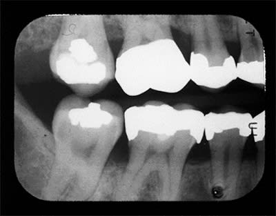 Radiograph for test question 16