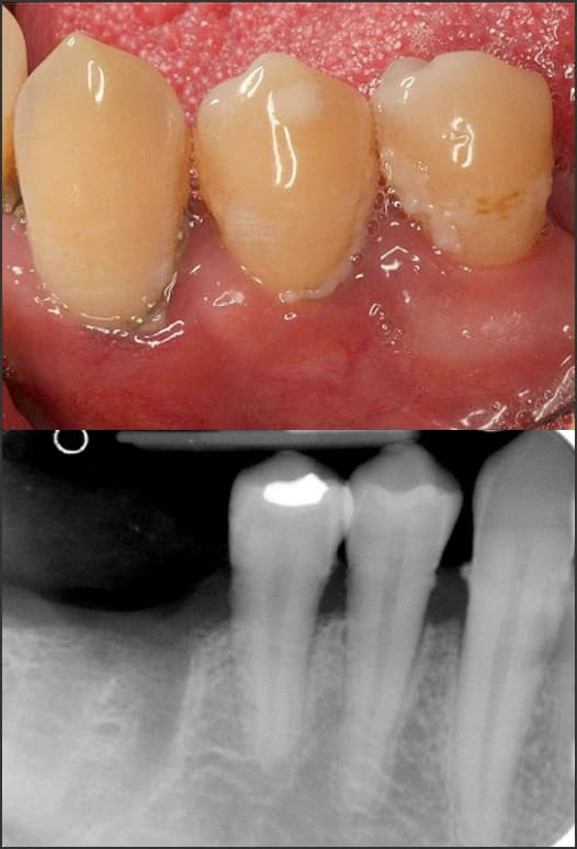 Photo and x-ray showing Stage 1 Grade B periodontitis
