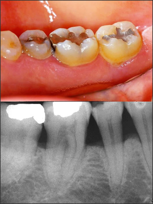 Photo and x-ray showing Stage 2 Grade B periodontitis
