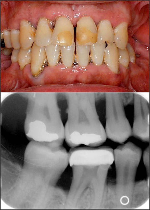 Photo and x-ray showing Stage 3 Grade B periodontitis