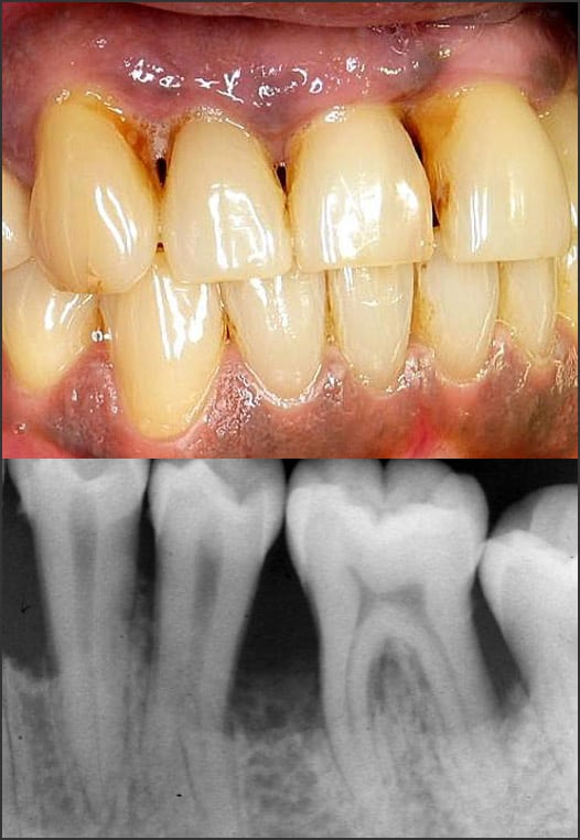 Photo and x-ray showing Stage 4 Grade C periodontitis