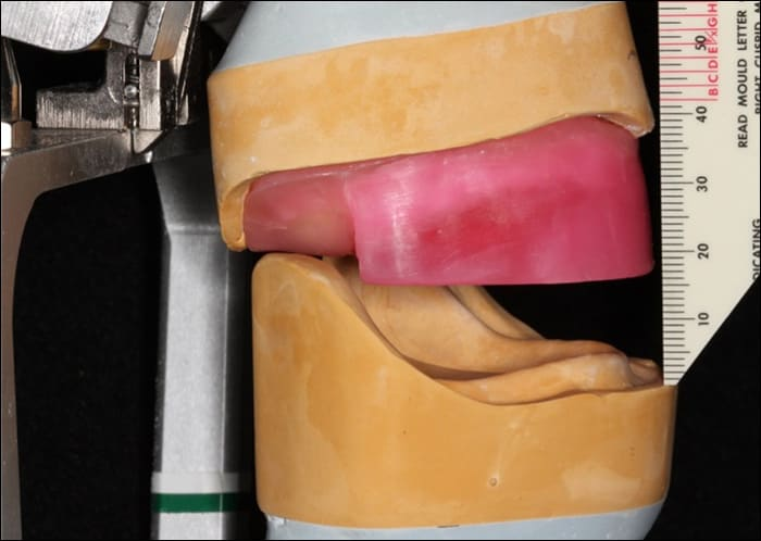 Photo showing the evaluation of restorative space using wax rims on mounted casts
