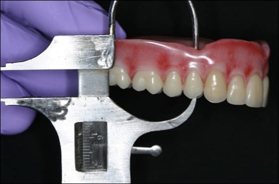 Photo showing vertical restorative space being measured with Boley gauge at right first premolar.