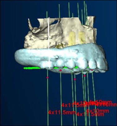 Photo showing implants planned parallel to each other.