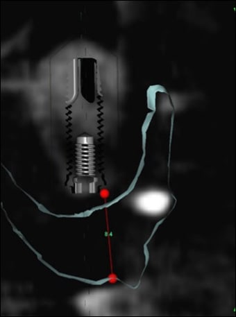 Photo showing a CBCT cross sectional image with the vertical restorative space being calculated.