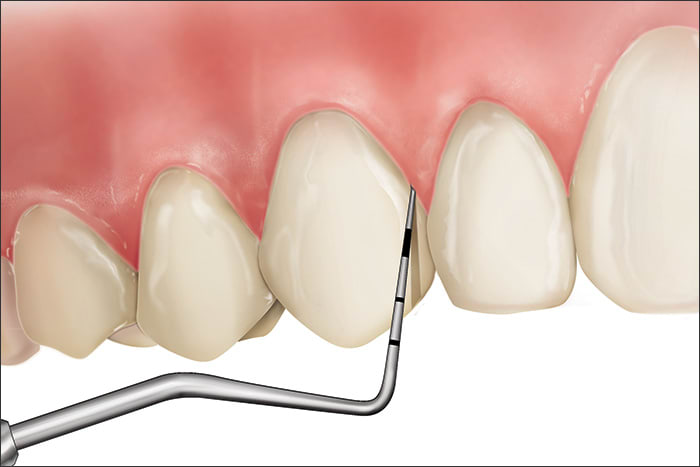Illustration showing a Code 0 during periodontal probing