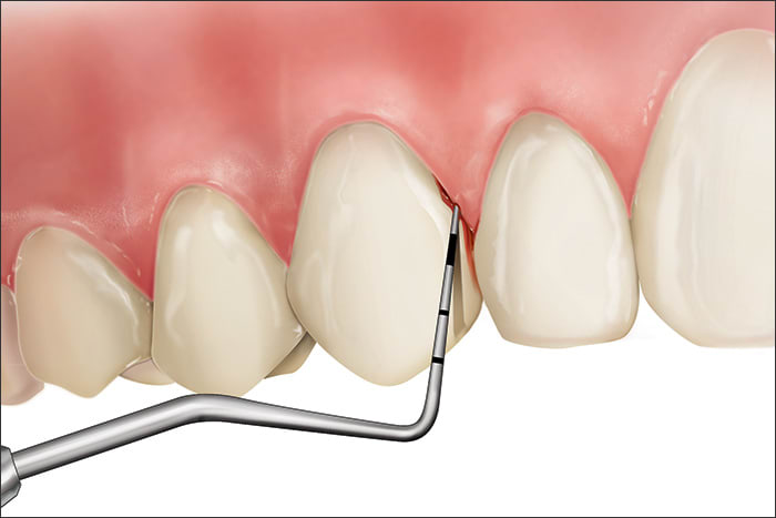 Illustration showing a Code 1 during periodontal probing
