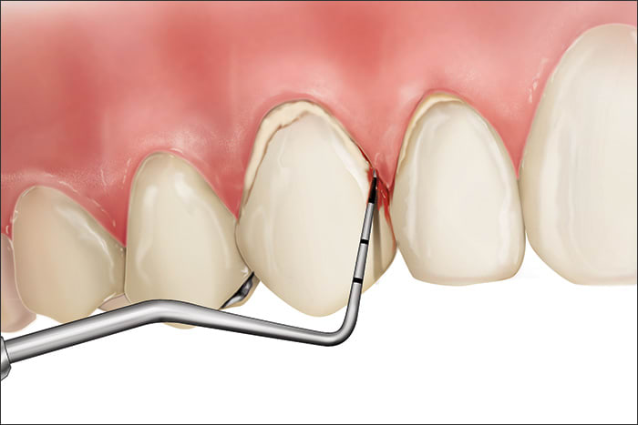 Illustration showing a Code 2 during periodontal probing