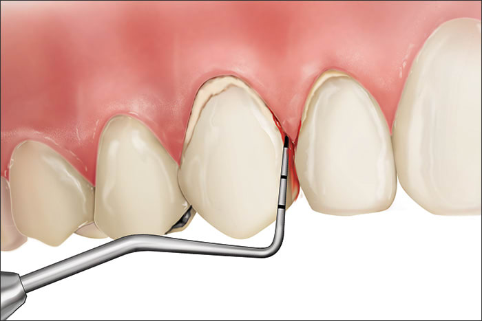 Illustration showing a Code 3 during periodontal probing