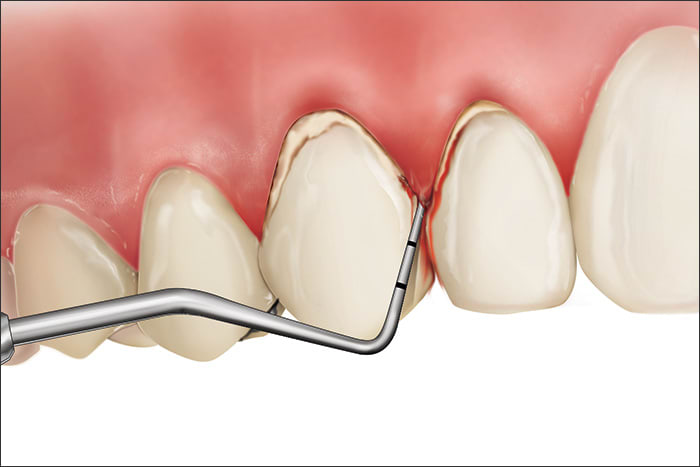 Illustration showing a Code 4 during periodontal probing