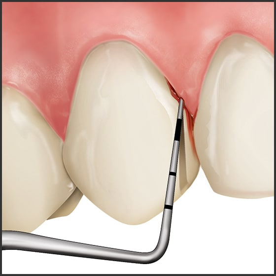 Introduction - Periodontal Screening and Recording (ce617)