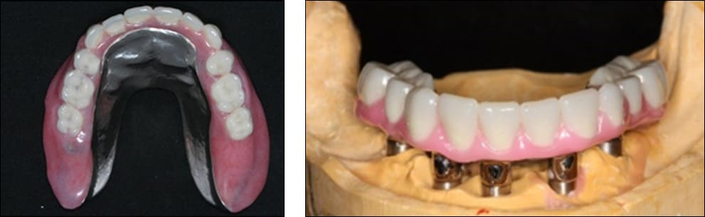 Photo showing the maxillary implant-supported overdenture and fabricating the fixed screw-retained mandibular complete denture.