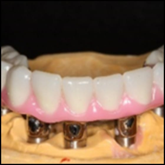 Introduction - Full Arch Implant Prostheses: Part II - Fabrication Procedures (ce618)