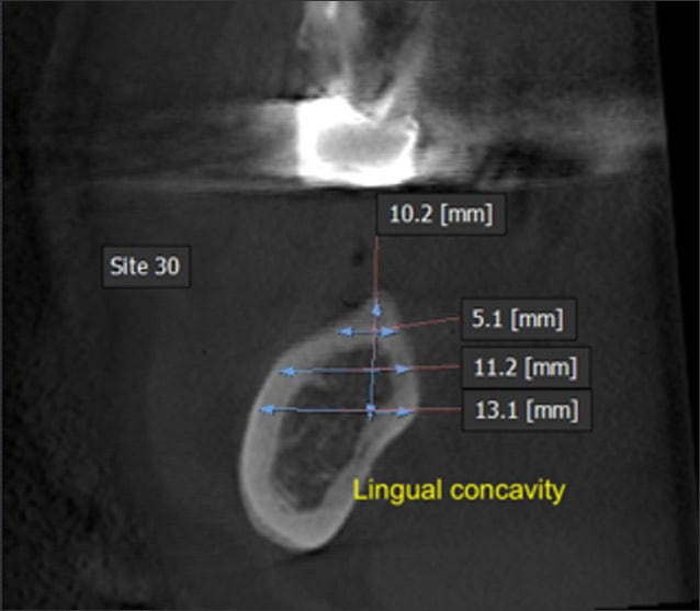 Image showing lingual concavity in #30 implant site