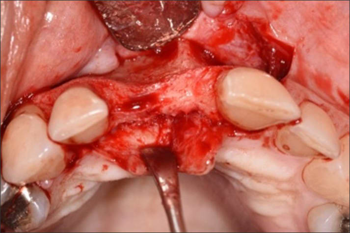 Photo showing full thickness flap elevation and adequate access for debridement of the defect