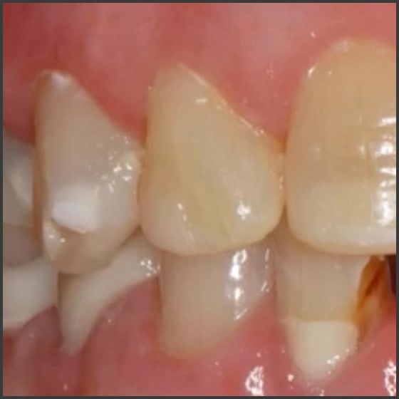 Prevention and Non-Surgical Treatment of Caries (ce640) - Introduction