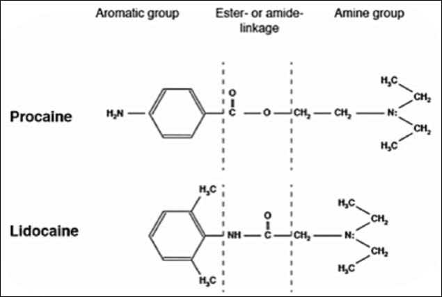 Diagrams showing the structural domains of local anesthetic agents.
