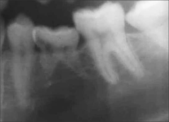 Cropped panoramic image of ankylosed primary tooth K