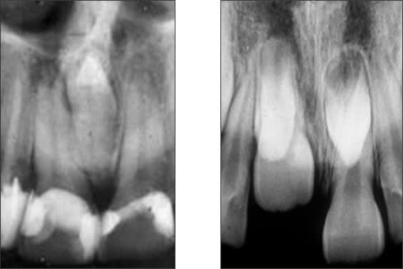 Periapical radiographs of single and multiple mesiodens