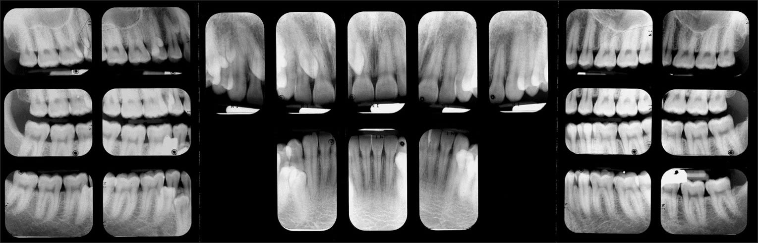 Full mouth radiographic survey of multiple supernumerary teeth. Note the size, shape, and location of the numerous supernumerary teeth