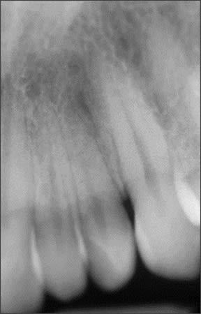 Periapical radiograph of maxillary lateral incisor #10 showing complete division