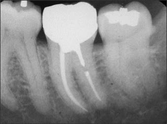 Periapical radiograph of #17 with a distal enamel pearl