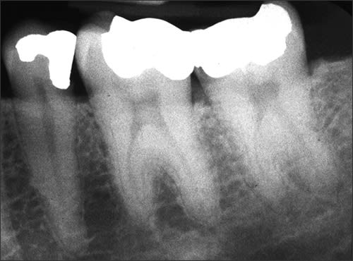 Periapical radiograph of mesotaurodont teeth #18 and #19