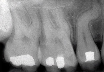Periapical radiograph of root dilaceration of #4